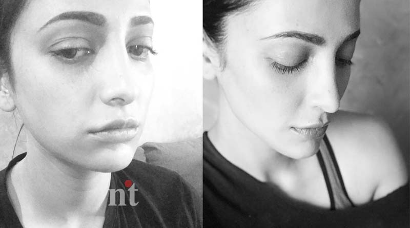 Shruti Haasan clarify about Plastic surgery